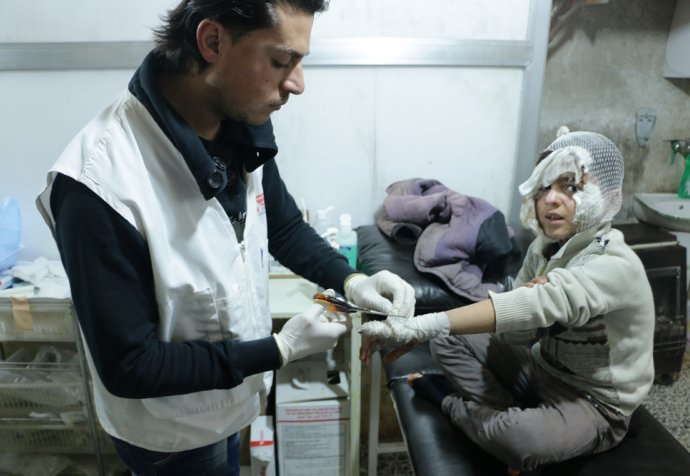 Burned children supported by MSF in northern Syria